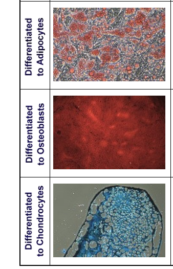 Adult Mesenchymal Stem Cell Differentiation
