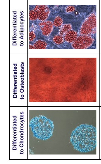Bone Marrow Mesenchymal Stem Cell Differentiation