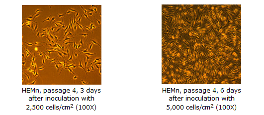 Epidermal Melanocytes Neonatal Cell Culture