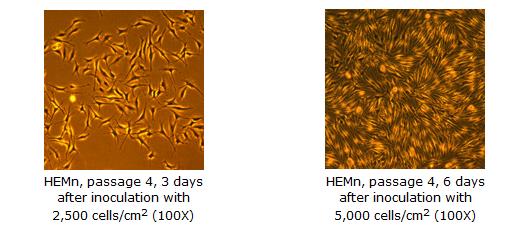 Epidermal Melanocytes Neonatal Cell Culture