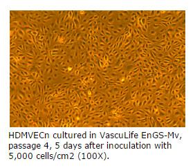 microvascular endothelial