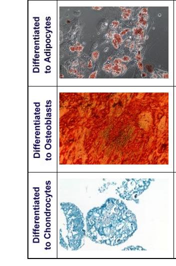 Mesenchymal Stem Cell Differentiation