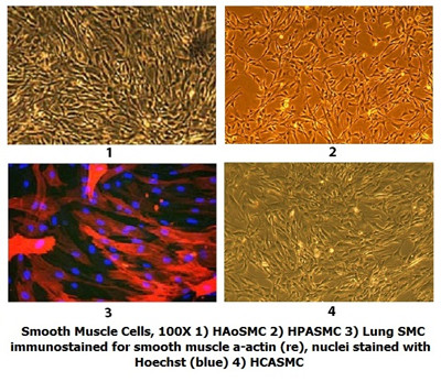 vascular smooth muscle cells culture