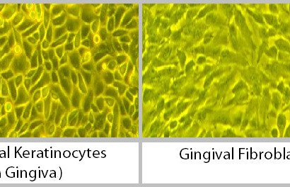 Oral Keratinocytes and Gingival Fibroblasts