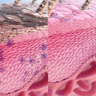 Normal Human Epidermal Keratinocytes