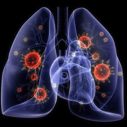 virus lungs
