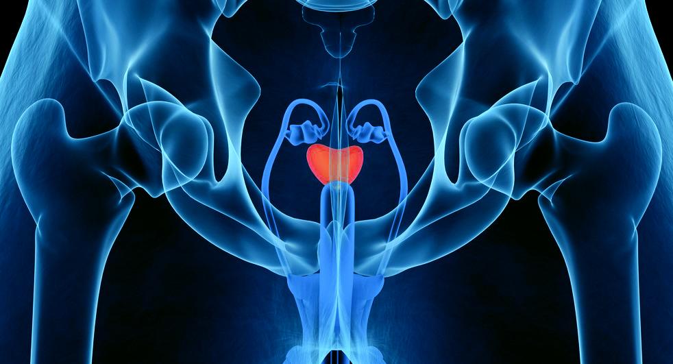 Investigating Bisphenol A (BPA) Exposure in Prostate Cancer Risk