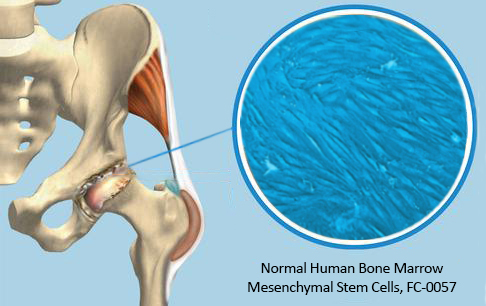 Bone Marrow Stem Cells and Hip Replacement
