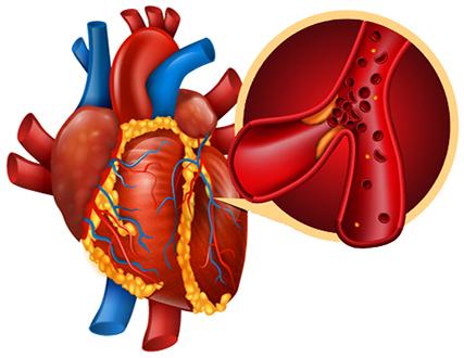 Endothelial Cardiac Damage